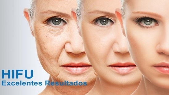 HiFU tretman (Visoko intenzivni fokusirani ultrazvuk) podmlađivanja lica ili vrata ili dekoltea!