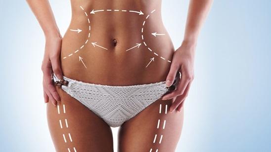 Tretman laserske liposukcije!