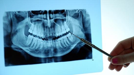 Digitalni ortopan na obe vilice!