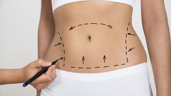 Belle -Van tretman bezkontaktne liposukcije!