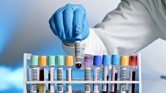 Osnovna biohemijska analiza krvi!