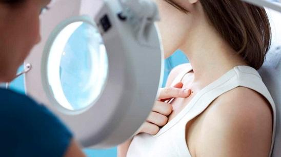 Dermoskopija - pregled mladeža na celom telu!
