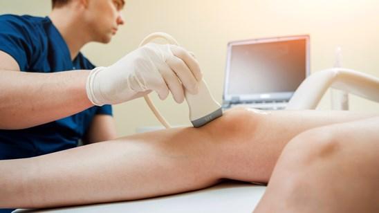 Color dopler krvnih sudova nogu sa pregledom vaskularnog hirurga!