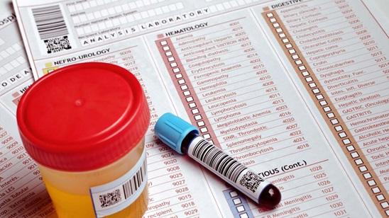 Analiza krvi i urina u Poliklinici LaboMedica!