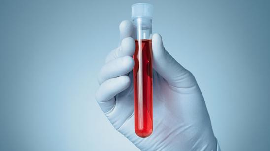 Biohemijska analiza krvi u Poliklinici LaboMedica!