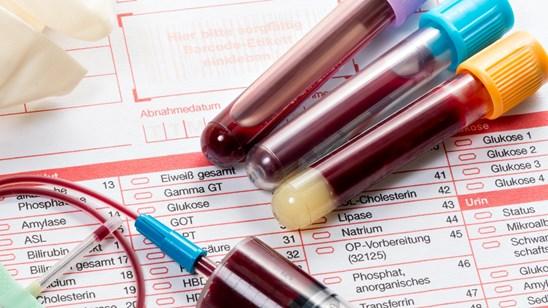 Alergološko testiranje iz krvi!