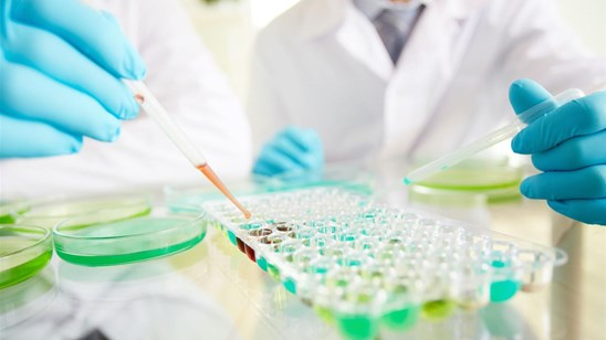 Kompletna analiza polnih hormona (LH, FSH, Prolaktin, Progest, Testos, Estradiol)!