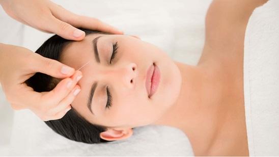 Tretman akupunkture u Centru za balans i lepotu Dr.Petrović!