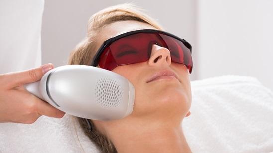 Tretman epilacije celog lica!