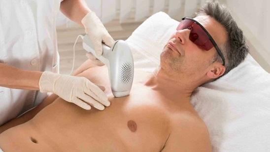 Laserska epilacija za muškarce Diodnim laserom!