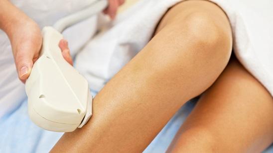 Tretman IPL epilacije celih nogu!