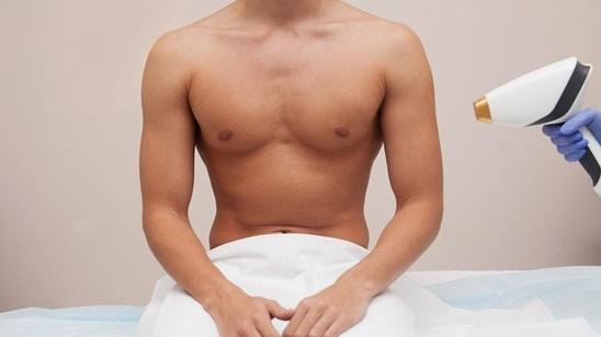 Epilacija diodnim laserom celih ramena i leđa za muškarce!
