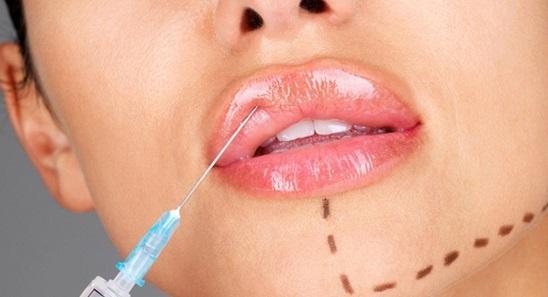 Popunjavanje usana, jagodica ili bora filerima hijalurona!