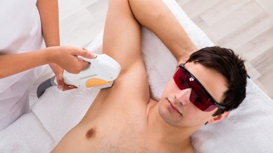 Epilacija pazuha diodnim laserom za muškarce!